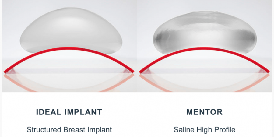 How much is a breast implants in canada